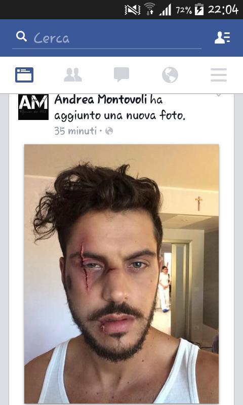 La foto Instagram di Andrea Montovoli in ospedale è VERA o FALSA?