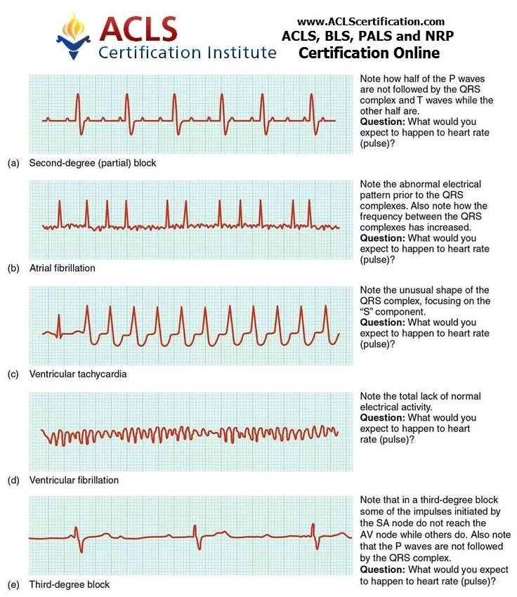 "ACLS Certification On Twitter: ""EKG. Who's Naturally Good"