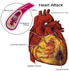 Silent Heart Attack Symptoms - http://t.co/h5CPx4EyvX