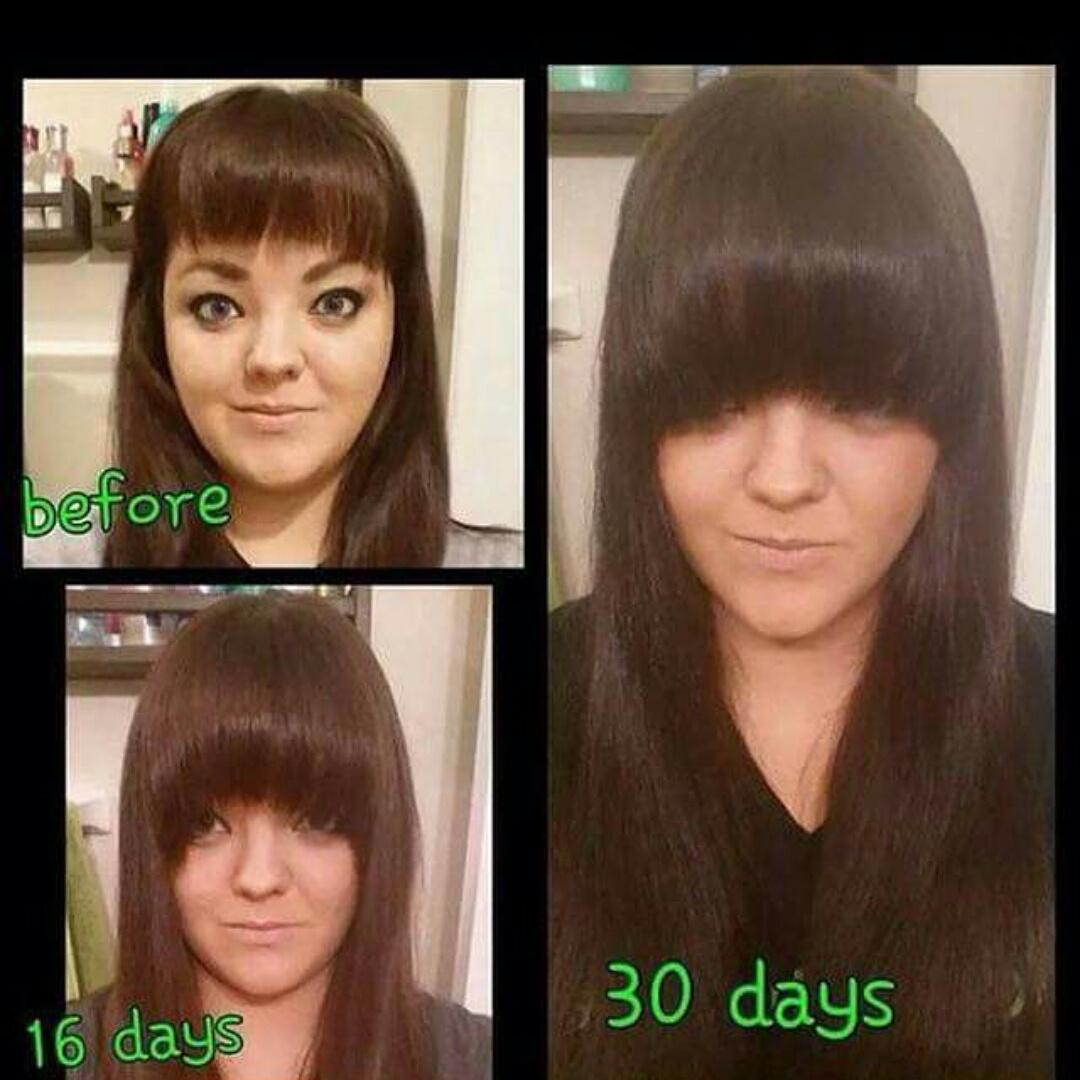 Julie Ann Dowd On Twitter Wow Hair Growth Results With Our Juice Plus Berry Capsules 20 50 Per Month Me Facebook Julieanndowd