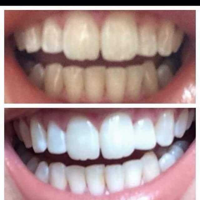 Toothpaste For Acne Before And After
