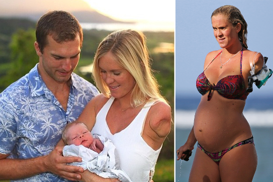 First picture of shark attack victim bethany hamilton with ...