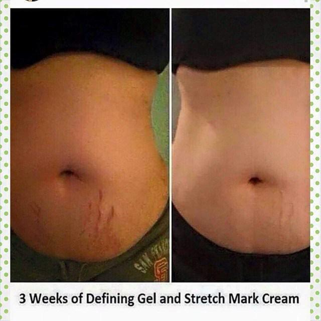 Brooklyn Wraps On Twitter How Epic Are These Results It Works