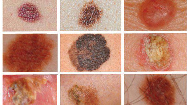 manchas malignas en la piel fotos