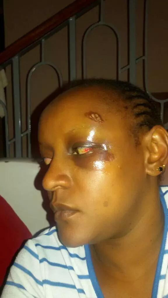 Hi @UKenyatta.  This happened to my friend @WanjeriNderu for fighting corruption.  Protect anti-corruption champions http://t.co/DHGuTJWJqn