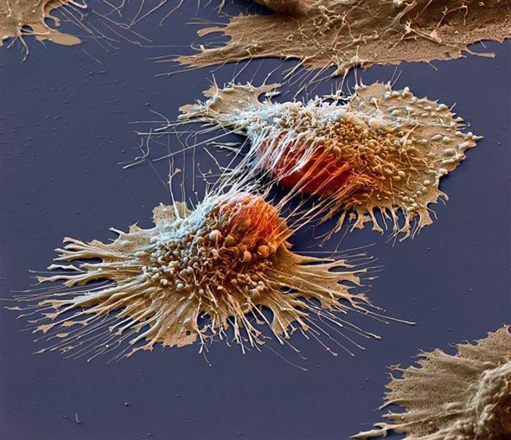 Cellule cancerogene fotografate al microscopio elettronico.