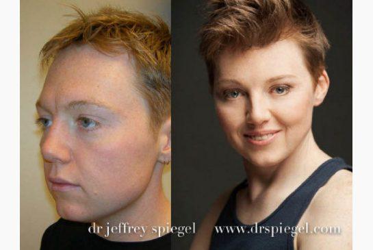 Facial feminization surgery photos connecticut