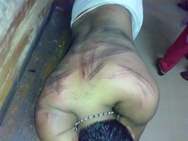 God @bnutwt Kerala Police brutal attack on @BJYM rally Kollam Dist Pres Prashanthji admitted hosp with major injuries http://t.co/XlkO8aBo2P