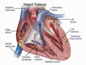 Symptoms of Heart Failure - http://t.co/wmPeh9qOba