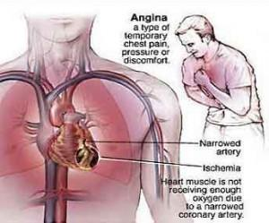 Heartburn Symptoms Vs Angina Symptoms - http://t.co/kXbIOSnUpL