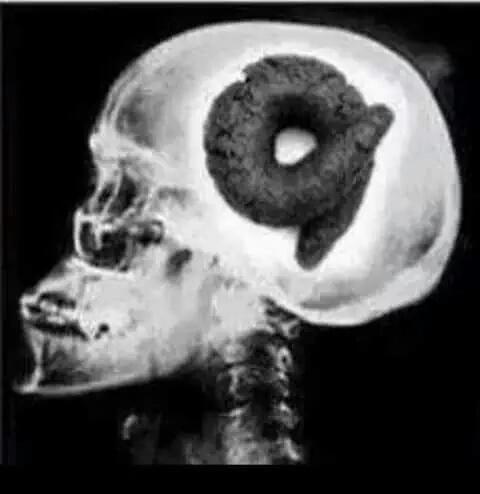Um estudo nos EUA descobriram como funciona o cérebro dos coxinhas no Brasil.Teve que fazer nos EUA,estudiosos omesmo http://t.co/blH9xXifsM