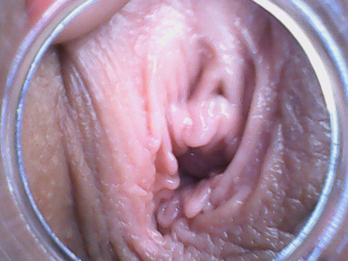 Pussy Endoscope