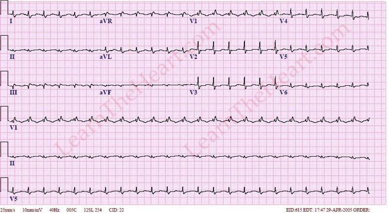 Image result for Restrictive cardiomyopathy ecg