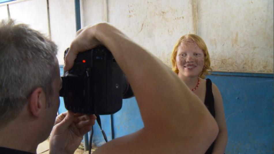 Documentary highlights the beauty of people with genetic conditions http://t.co/tMK0n6z8sF http://t.co/mv0NIPoGfh