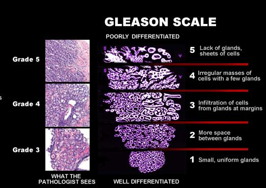 gleason para cancer de prostata