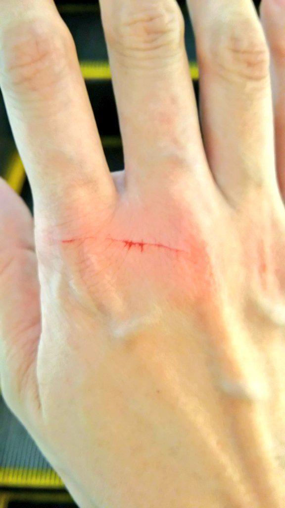 きのう赤子を抱っこ紐で抱えて外出中、すれ違いざまに手を負傷しました。年輩男性が押していた自転車のカゴから何か飛び出していたようです。ちょうど子の腕に手を添えていたので自分に引っ掻き傷が出来ただけですが、下手したら赤子の腕が切れていた。 http://t.co/gDq2u48U7c