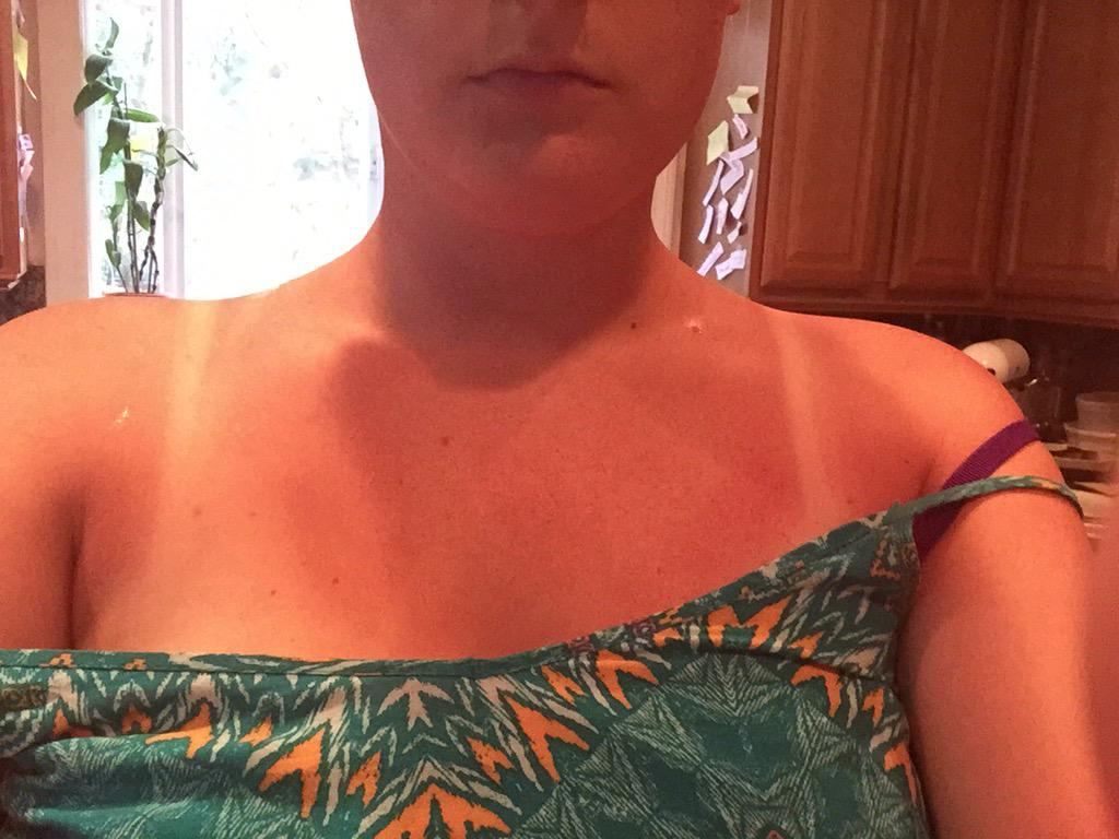 Don't buy @Honest sunscreen unless u want to look like this. Second time I've tried this stuff and got fried http://t.co/pEhO5GYIkQ