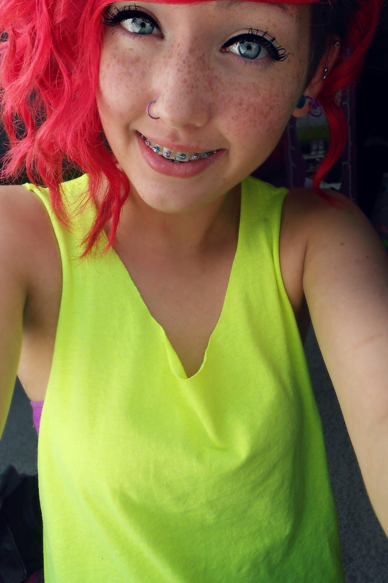 "Girls With Braces On Twitter: ""Cute Freckles #braces Http"