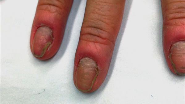 The Doctors On Twitter Bartender Rot A Womans Fingernails Began