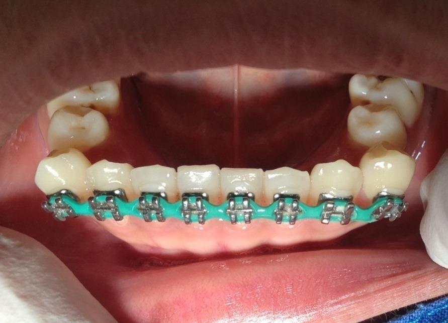 อันตรายจากการจัดฟันแฟชั่น ใส่ลวดผิดๆฟันเคลื่อนตามรูปเหล็กที่ใส่เป็นสีเหลี่ยมเลย ใครจัดฟันแฟชั่นเลิกซะนะ #HowtoPerfect http://t.co/vgS5lVyotM
