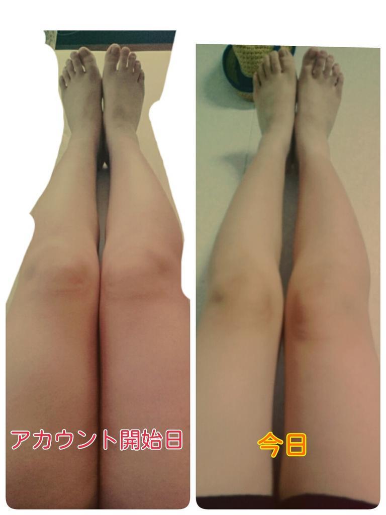 痩せる 足 パカ
