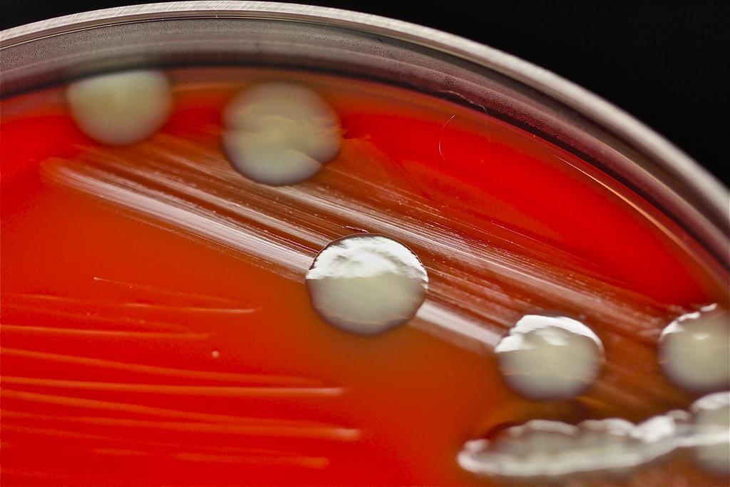 Rischio per diabetici: Germe patogeno nella schiuma detergente BodyWash della DiaClin