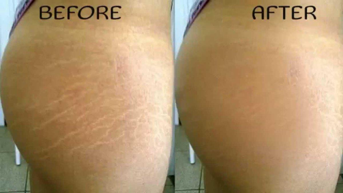 pierde greutate fast stretch marks)