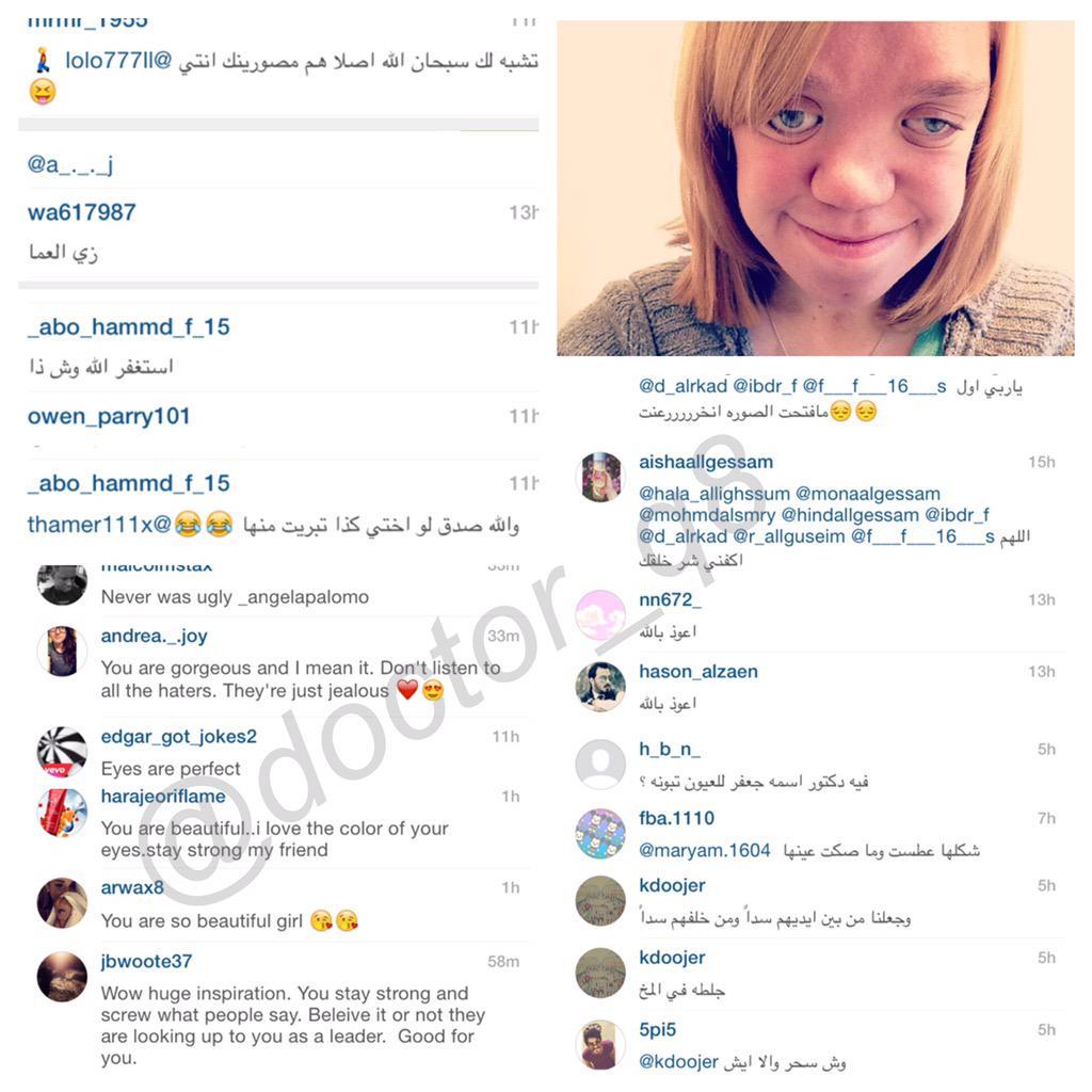 طفلة مصابة بالداون نشرت صورتها انستغرام كنوع من الدعم والتعاطف معها شاهدوا التعليقات ثم قرروا من فيهم الكفار http://t.co/6HQ4Cn0q3h