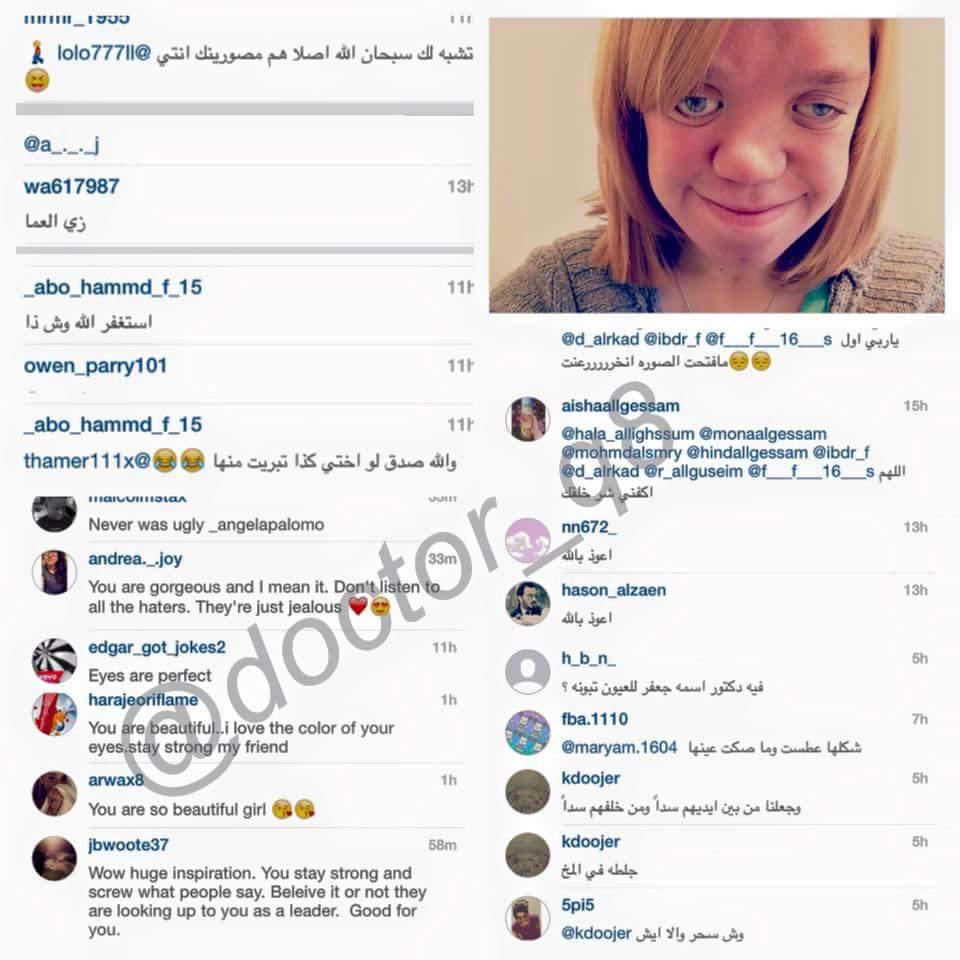 طفلة مصابة بمتلازمة داون نشرت صورتها على انستجرام .. شوفوا تعليقات العرب و الاجانب .. مين فيهم الكفار؟ http://t.co/X2eYmIsmbf
