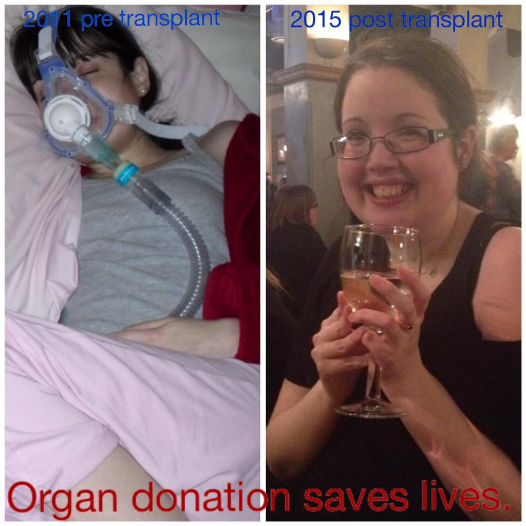 It's transplant week, mine is just one story. Please sign up & save lives. https://t.co/TR9FAYUHXx http://t.co/yLNuzRBOhc