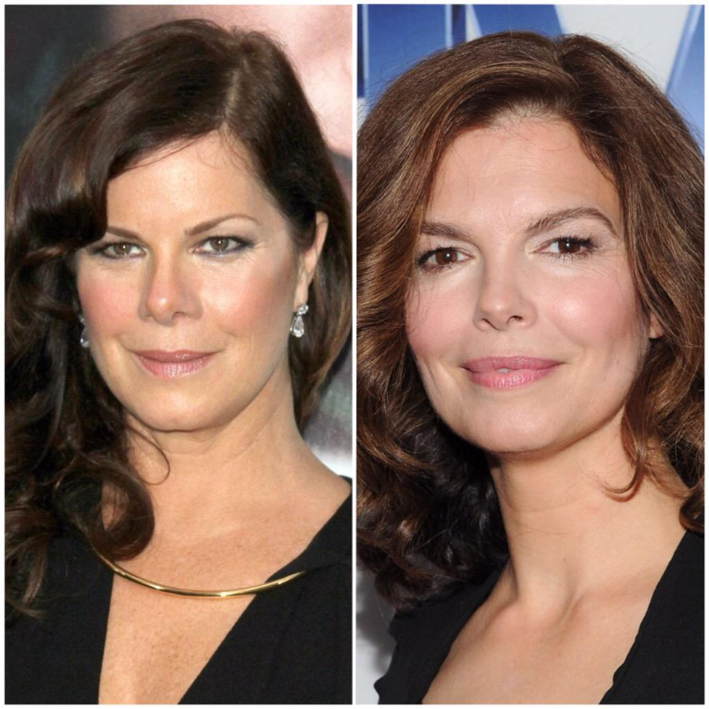 from Layton marcia gay harden nose job