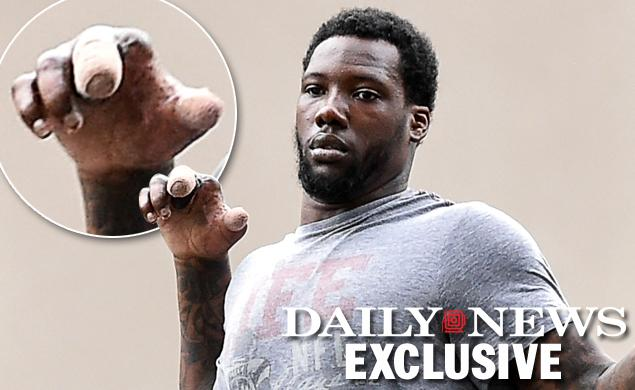 This is what Jason Pierre-Paul's hand looks like now