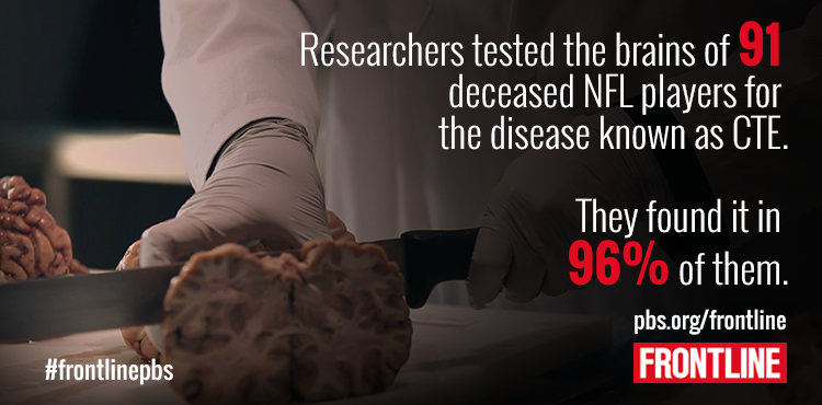EXCLUSIVE: 87 deceased NFL players test positive for the brain disease CTE, @jbrezlow reports http://t.co/MGPC1s5hYA