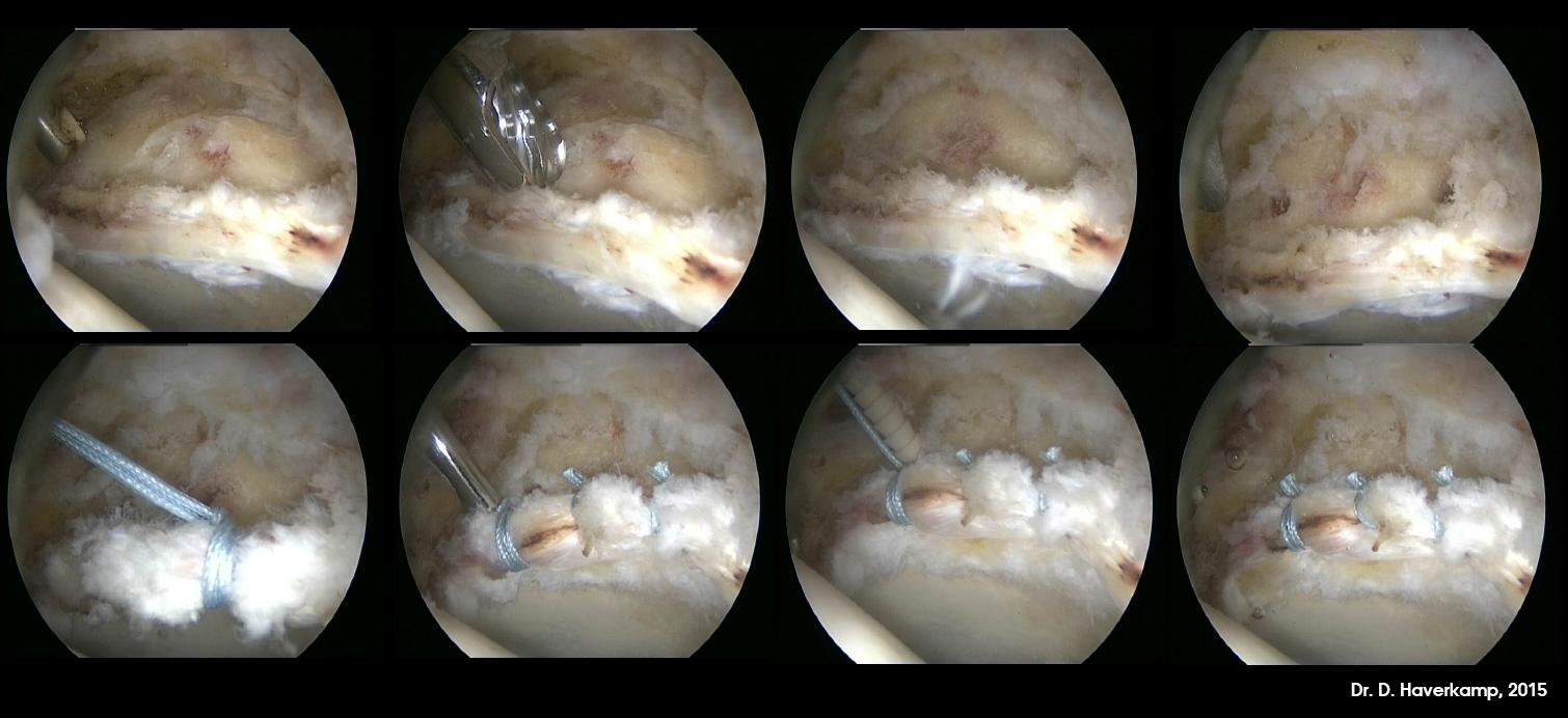 voorbeeld van heuparthroscopie met pincer resectie met labrum refixatie