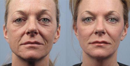 Wendy Wilken On Twitter Curing Wrinkles And Lifting Loose Face