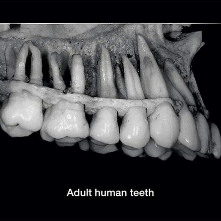 форма корней нижних зубов человека фото решили