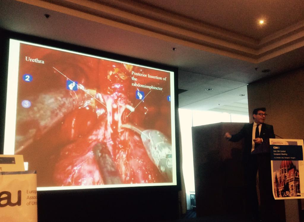 Bob Djavan explains intrafascial dissection in robotic radical prostatectomy at CEM #cem15 http://t.co/IAFWfZIQ7L