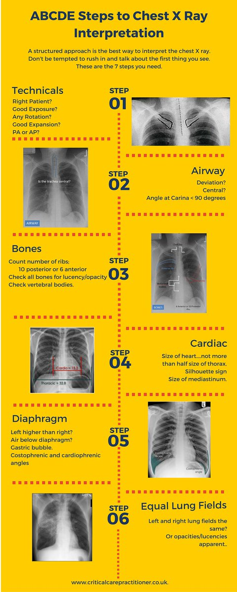 Jonathan Downham On Twitter Abcde Approach To Chest X Rays