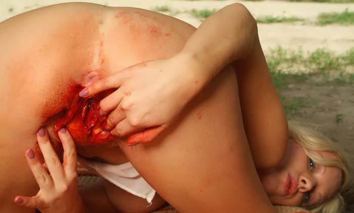 Losing virginity bleeding too big — 11