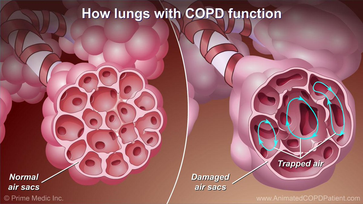 the pathophysiology of a disease copd Some lung diseases  (1mb) - respiratory diseases such as asthma, pneumonia, influenza and chronic obstructive pulmonary disease (copd).