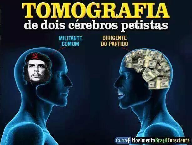 Resultado de imagem para tomografia de dois cerebros petistas twitter