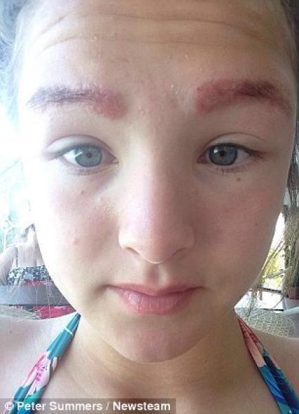 Brûlures de cire faciale