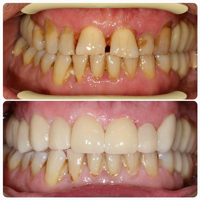 перфект смайл накладные зубы
