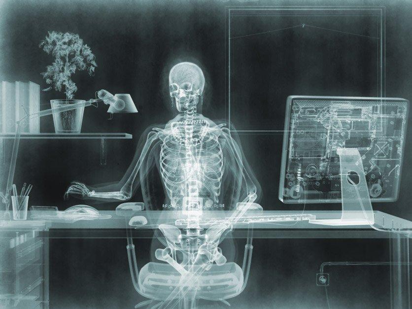 Смешные рентген картинки