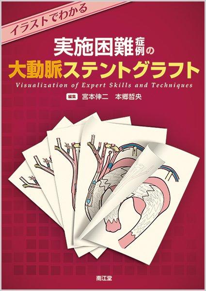 【南江堂】『イラストでわかる 実施困難症例の大動脈ステントグラフト』大動脈ステントグラフト内挿術のエキスパートが明かす、自らの技術とこだわり、編者自らが描き起こしたビジュアルな手技書。