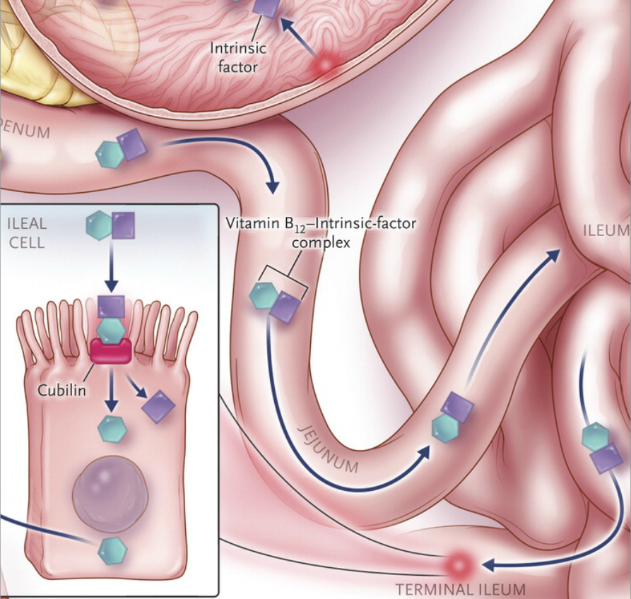 Nejm On Twitter Review Article Drug Induced Megaloblastic Anemia