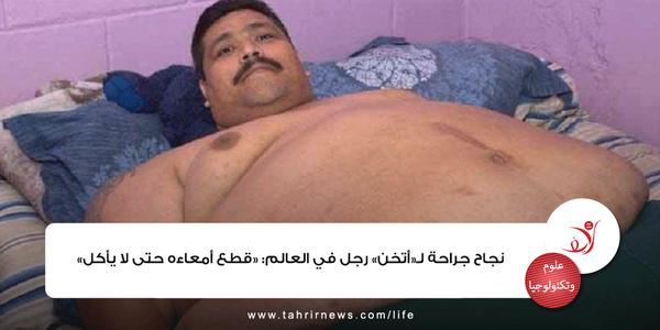 نجاح جراحة لـ«أتخن» رجل في العالم: «قطع أمعاءه حتى لا يأكل» CSmER8NUcAAdMCS