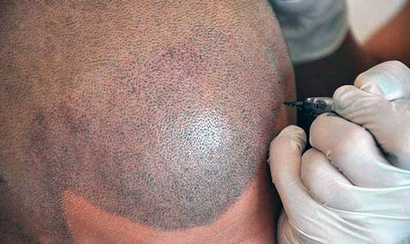 El aparato ultrasonoro infrarrojo para la reconstitución de los cabello molecule