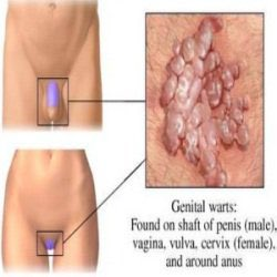 Can You Get Genital Warts From Having Oral Sex - The