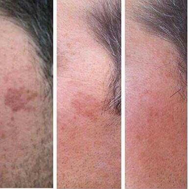 Borra manchas, marcas de acne, arrugas, rejuvenece #Nerium https://t.co/c2ab02R9pn https://t.co/QZwrgpbiXk